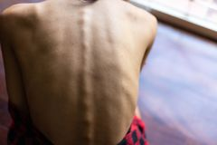 Kvinna för ståendeanoreximodell Härlig hud för modellkvinnablickar arkivfoton