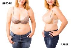 Kvinna före och efter som bantar Arkivfoto