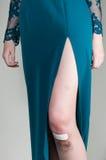 Kvinna i aftonklänning med det mörbultade sårade knäet royaltyfri fotografi