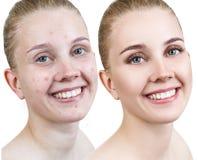 Kvinna med behandling och smink för akne före och efter royaltyfria foton