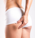 Kvinna med den perfekta kroppen som kontrollerar cellulite royaltyfria bilder