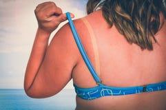 Kvinna med den röda solbrända skuldran - solbrännabegrepp royaltyfria foton
