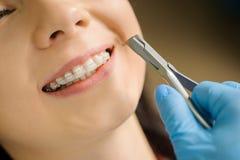 Kvinna med keramisk hänglsen på tänder på det tand- kontoret arkivfoto