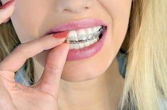 Kvinna med mouthguarden royaltyfri bild