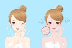 Kvinna med skincareproblem Arkivbild