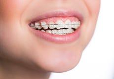 Kvinna med tandhänglsen Royaltyfri Fotografi