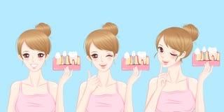 Kvinna med tandimplantatbegrepp stock illustrationer