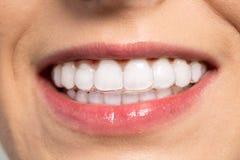 Kvinna som bär den orthodontic silikoninstruktören arkivfoton