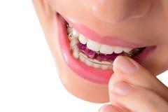 Kvinna som bär orthodontic löstagbar brac Arkivbilder