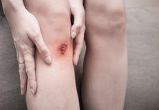 Kvinna som har en beläggning av torkat blod eller sårskorpan på hennes knä royaltyfri fotografi
