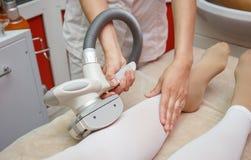 Kvinna som har tillvägagångssätt av den anti-massagen för cellulite LPG, cosmetologyklinik royaltyfri foto