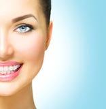 Kvinna som ler med keramisk hänglsen på tänder royaltyfri foto