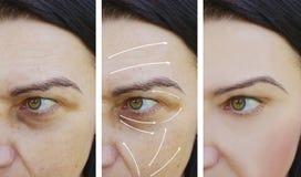 Kvinnaansiktsbehandlingen rynkar svullna tillvägagångssätt för effektskillnadutfyllnadsgods före och efter arkivbilder