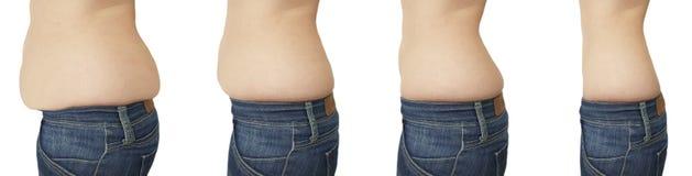 Kvinnabukbantningen förlorar för vikt, når den har retuscherat liposuction royaltyfri foto