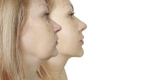 Kvinnadubbelhaka som före och efter bågnar tillvägagångssättbehandling royaltyfri fotografi