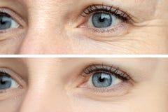 Kvinnaframsida, behandling för ögonskrynklor före och efter - resultatet av att föryngra cosmetological tillvägagångssätt av bior arkivfoton