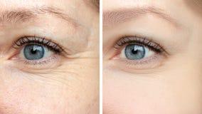 Kvinnaframsida, behandling för ögonskrynklor före och efter - resultatet av att föryngra cosmetological tillvägagångssätt av bior arkivbilder