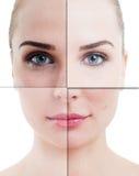 Kvinnaframsidan delade i delar med perfekt och ofullbordad hud Fotografering för Bildbyråer