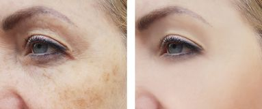 Kvinnaframsidan rynkar tillvägagångssätt för hälsa för behandling för pigmenteringskillnadkorrigering före och efter arkivfoton