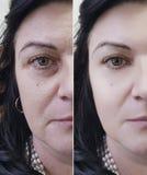 Kvinnaframsidaskrynklor före och efter arkivfoton