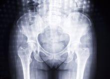 Kvinnahöfter i röntgenfotografering Royaltyfri Bild