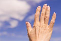 Kvinnahand med osteoarthritis Royaltyfria Foton
