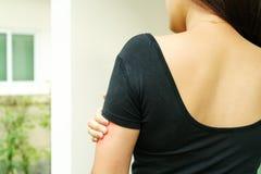 Kvinnahandskrapa klådan på arm-, sjukvård- och medicinbegrepp royaltyfria foton