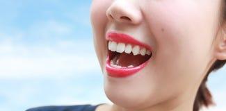 Kvinnamunleende med stora tänder över blå bakgrund fotografering för bildbyråer