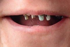 Kvinnan öppnade hennes mun vitt och visade att hennes krokiga och ruttna tänder stänger sig upp arkivfoton