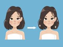 Kvinnan jämför akneframsidan och skönhetframsidan stock illustrationer