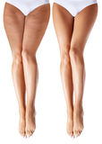 Kvinnan lägger benen på ryggen före och efter behandling arkivbild