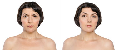 Kvinnan, med och utan att åldras, bränner, dubbelhakan, bekymmerskrynklor, kosmetiska nasolabial veck före och efter eller det pl arkivbilder