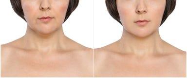 Kvinnan, med och utan att åldras, bränner, dubbelhakan, kosmetiska nasolabial veck före och efter eller det plast- tillvägagångss arkivbilder