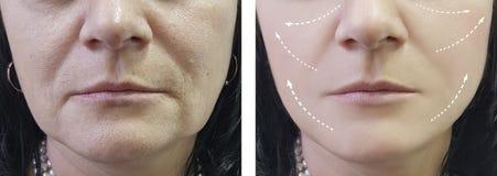 Kvinnan rynkar före och efter terapieffekt som åldras tålmodiga tillvägagångssätt royaltyfria bilder