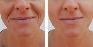Kvinnan rynkar på tillvägagångssätt för hälsa för framsidadermatologi före och efter anti--åldras royaltyfria foton
