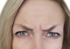 Kvinnan rynkar pannan hennes panna, skrynklor, botox royaltyfria bilder