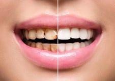 Kvinnas tänder före och efter som gör vit arkivbild