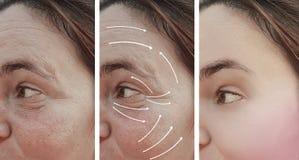 Kvinnaskrynklor vänder mot för kosmetologskillnaden för hud före och efter korrigeringen för terapi för cosmetology, pil royaltyfria foton