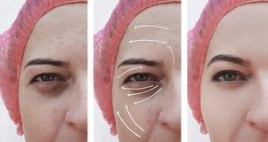 Kvinnaskrynklor vänder mot före och efter korrigeringen för skillnadcosmetologyterapi, pil arkivfoton