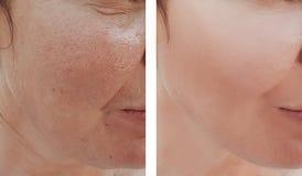 Kvinnaskrynklor vänder mot före och efter korrigeringstillvägagångssättdermatologi arkivfoto