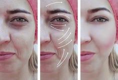 Kvinnaskrynklor vänder mot före och efter skillnadterapikorrigeringen, pil fotografering för bildbyråer