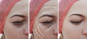Kvinnaskrynklor vänder mot före och efter terapikorrigeringen, pil arkivfoto
