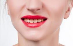 Kvinnatänder, innan att bleka Tänder som gör vit på tandläkaren Royaltyfri Foto