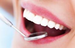 Kvinnatänder och en tandläkarespegel Arkivbilder