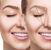 Kvinnlig ögonbrynkorrigering för framsida före och efter arkivbild