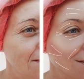 Kvinnlig ansikts- skrynklabehandling mognar före och efter kosmetiska tillvägagångssätt, pil arkivfoton