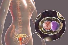 Kvinnlig chlamydiosis, medicinskt begrepp royaltyfri illustrationer