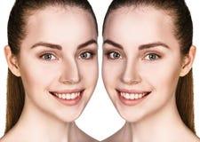Kvinnlig kirurgi för näsa före och efter Arkivbilder