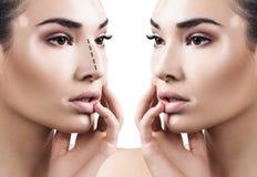 Kvinnlig kosmetisk kirurgi för näsa före och efter Arkivbilder