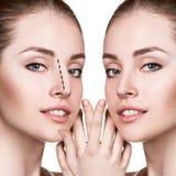 Kvinnlig kosmetisk kirurgi för näsa före och efter Fotografering för Bildbyråer